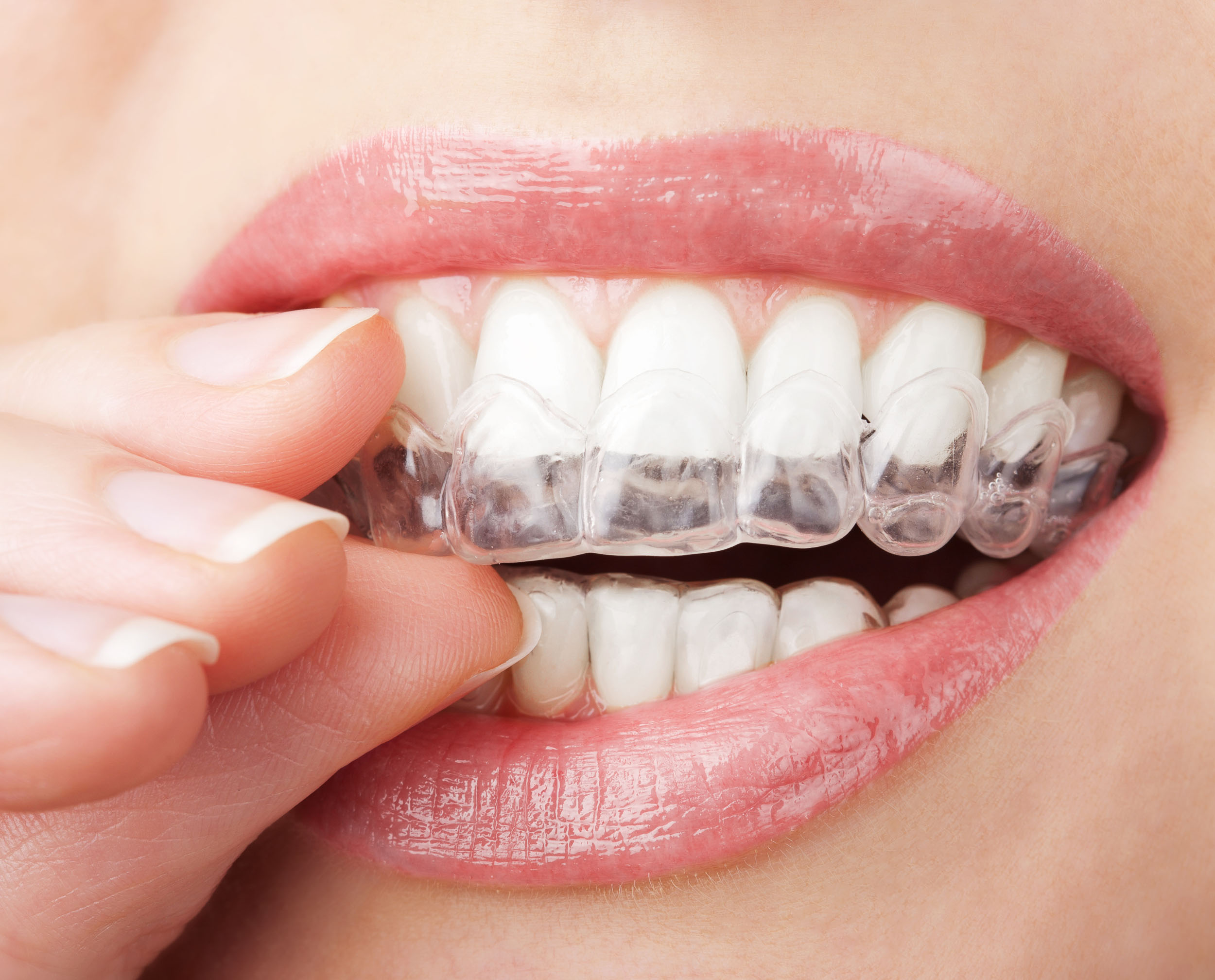 clear aligners invisalign nivellipso at smiletowin.com
